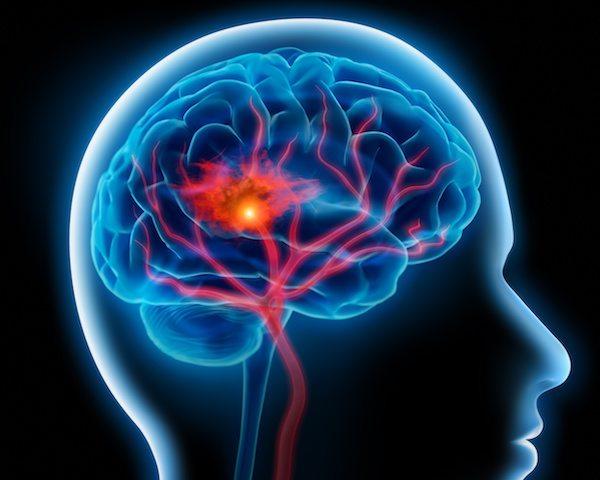 symptomer på blodprop i hjernen